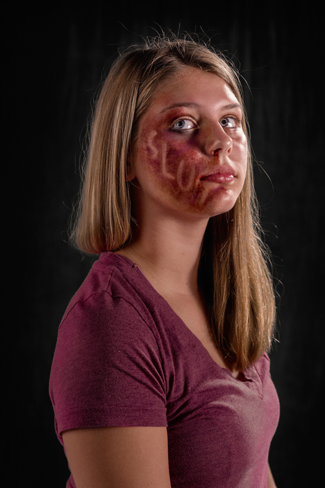 20 Powerful Images Define The Scars Left Verbal Abuse-10