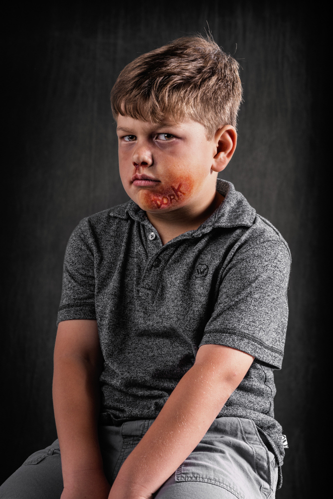 20 Powerful Images Define The Scars Left Verbal Abuse-13