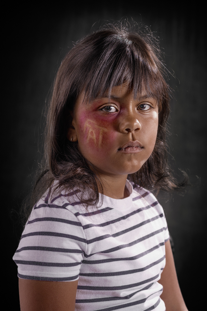 20 Powerful Images Define The Scars Left Verbal Abuse-15