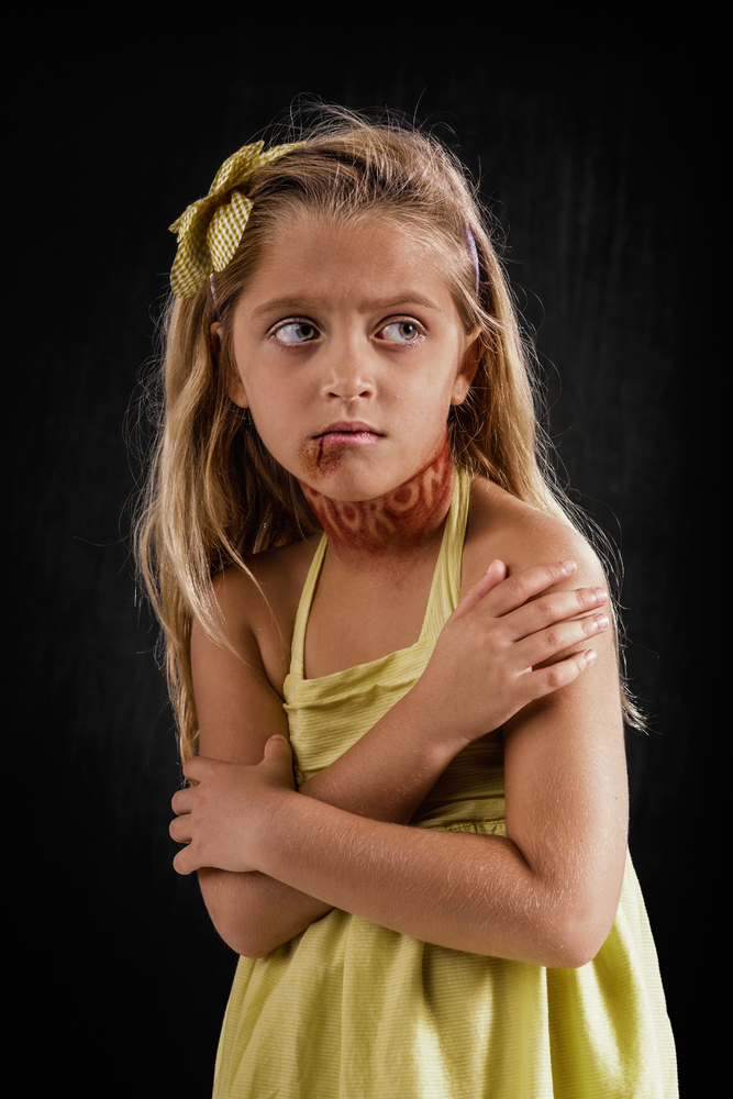 20 Powerful Images Define The Scars Left Verbal Abuse-17