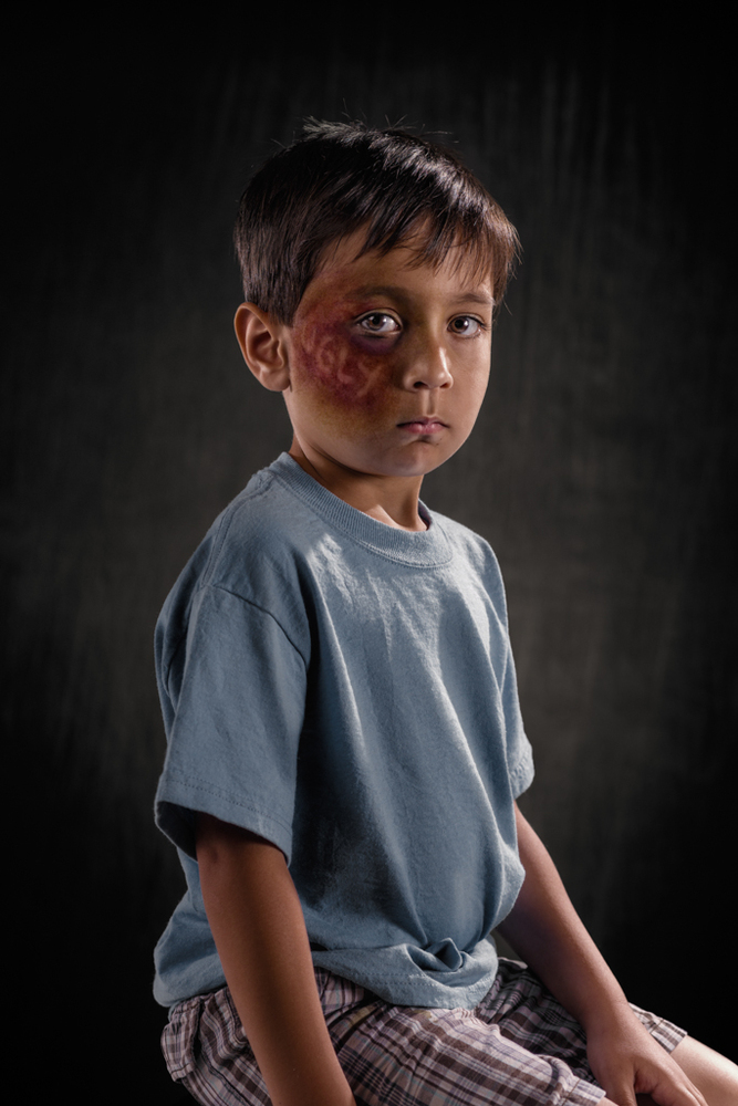 20 Powerful Images Define The Scars Left Verbal Abuse-18