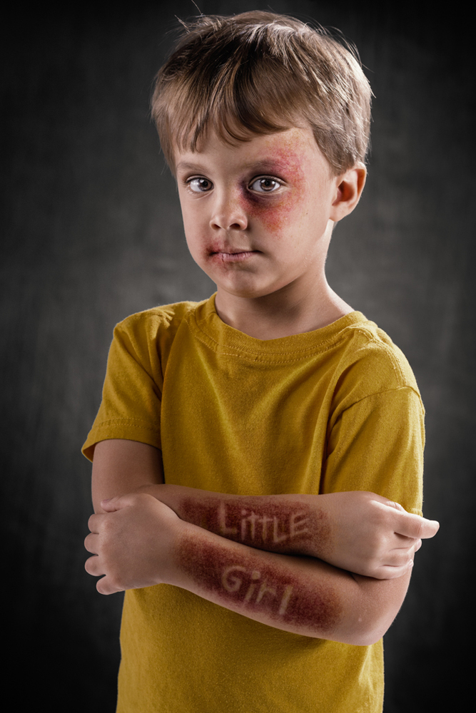 20 Powerful Images Define The Scars Left Verbal Abuse-4