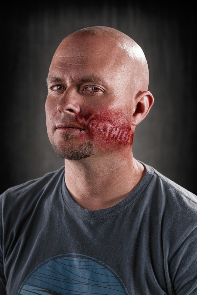 20 Powerful Images Define The Scars Left Verbal Abuse-5